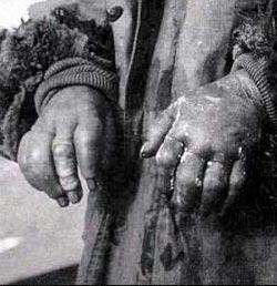 侵华日军人体实验_地记载了侵华日军北支那防疫给水部1941年进行人体冻伤实验的完整过程